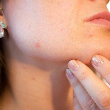Therapien gegen Akne, Narben, Dehnungsstreifen und Schlupflider